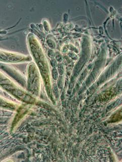 Sprawca choroby Pezicula Alba