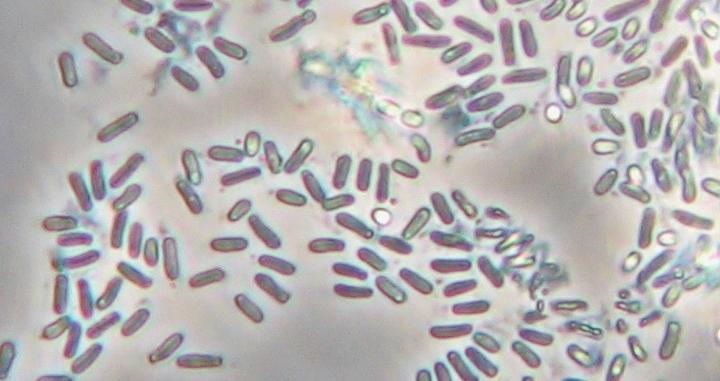 Phyllosticta mali sprawca powstawania plamistości jabłoni